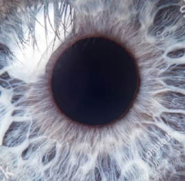anterior eye photography